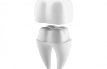 Dental Crown Illustration
