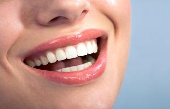 Cosmetic Smile Dallas GA